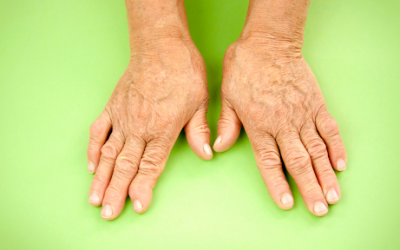 Ayurveda Treatment For Arthritis