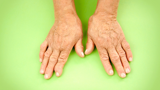 Ayurveda Treatment For Arthritis